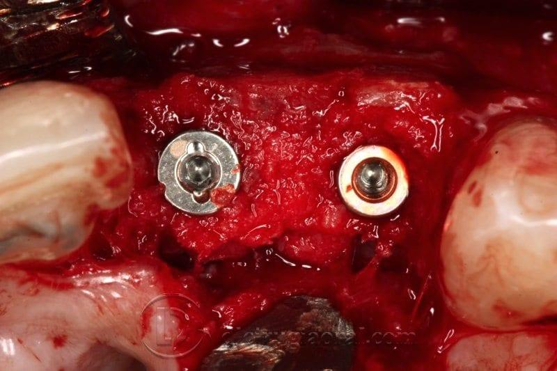 Cirugía de implantes sobre reconstrucción en frente anterior
