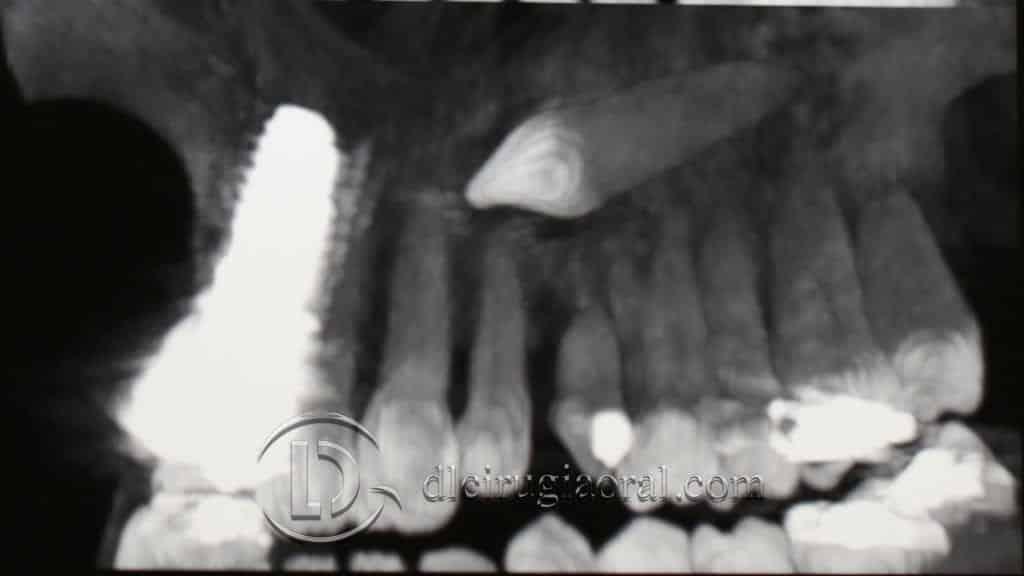 Canino incluido: exodoncia + implante + injerto