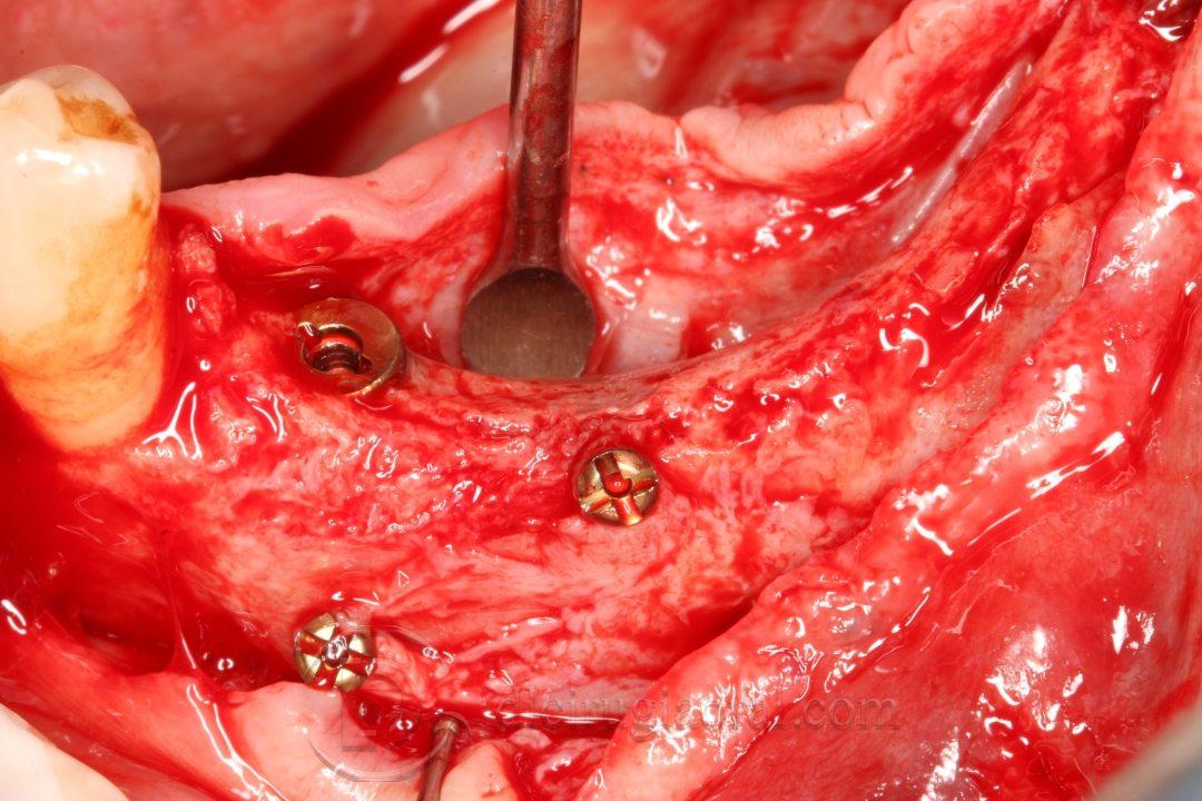 Colocación de implantes tras injerto en mandíbula anterior