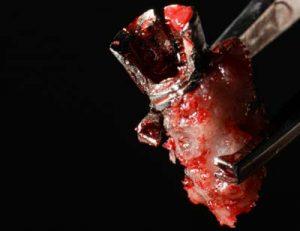 Tratamiento del Implante fracturado