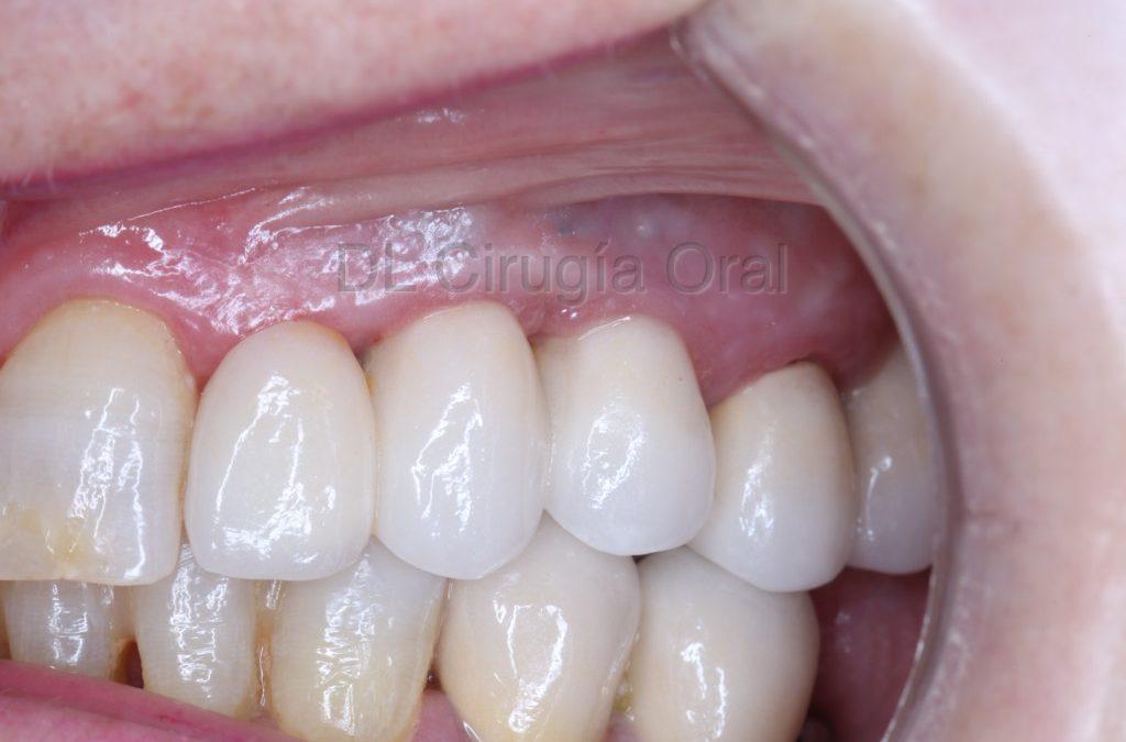 Falta de hueso y de dientes: colocación de implantes dentales con injerto de hueso